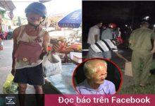 Photo of Người đàn ông tâm thần 40 tuổi đi ăn xin bị tai nạn, trước khi qua đời vẫn còn giữ chặt hộp xôi cho cha già 80 tuổi