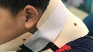 Photo of TP.HCM: Bắt chước trò chơi nhào lộn trên TikTok, bé trai 10 tuổi ngã vẹo cổ, đầu bị nghiêng sang một bên