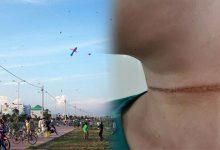 Photo of Người phụ nữ bị dây diều gây vết thương, kéo lê 2m rồi ngã xuống đường