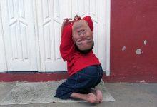 Photo of Cuộc sống phi thường của người đàn ông có đầu lộn ngược