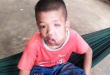 Photo of Bé trai tội nghiệp bị biến dạng khuôn mặt, mù 1 mắt vì khối u lớn